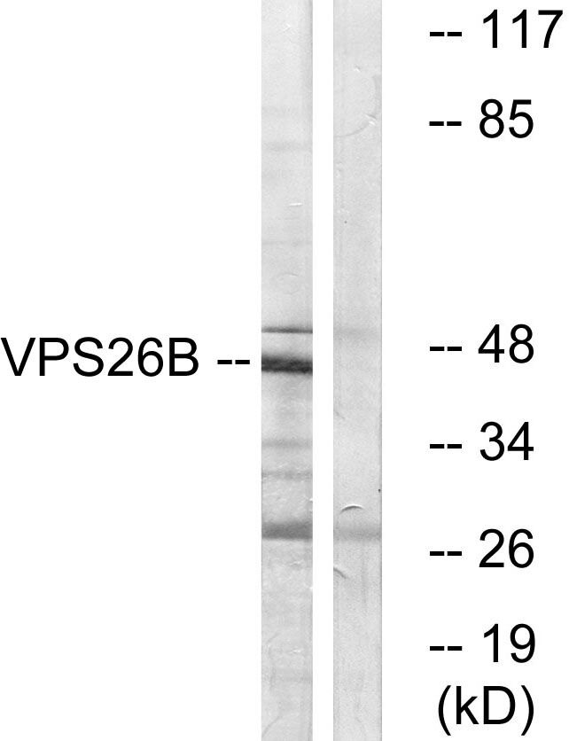 VPS26B Antibody (PA5-39523)