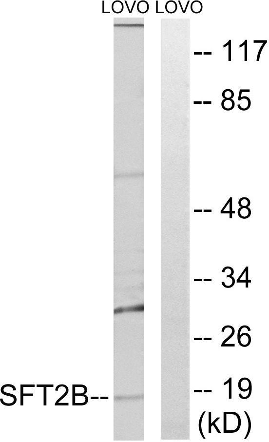 SFT2D2 Antibody (PA5-39525) in Western Blot