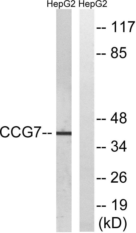 Calcium Channel 7 Antibody (PA5-39528)
