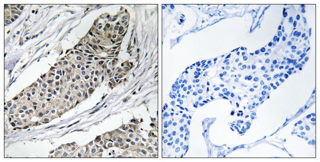KCNAB3 Antibody (PA5-39531) in Immunohistochemistry (Paraffin)