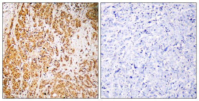 ZNF50 Antibody (PA5-39538)
