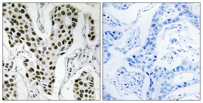 ZC3H4 Antibody (PA5-39541)