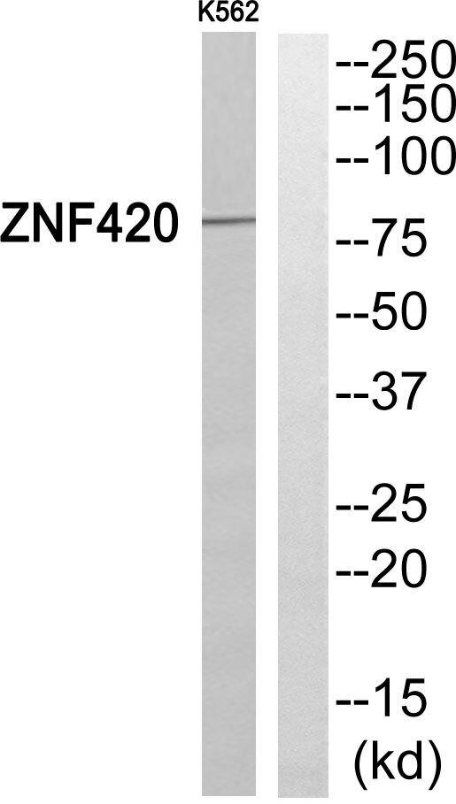 ZNF420 Antibody (PA5-39543) in Western Blot