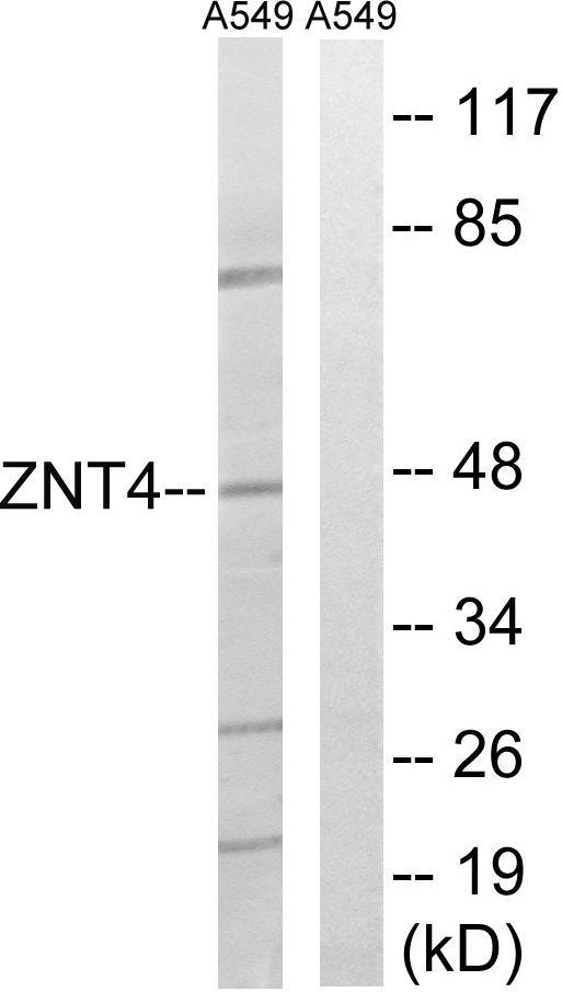 SLC30A4 Antibody (PA5-39552) in Western Blot
