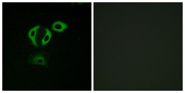 TACC3 Antibody (PA5-39558)