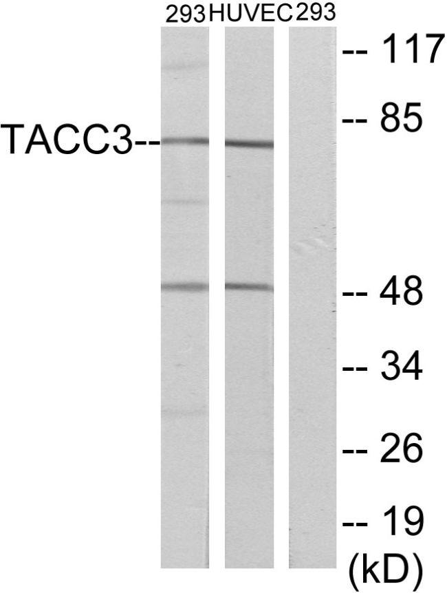 TACC3 Antibody (PA5-39558) in Western Blot