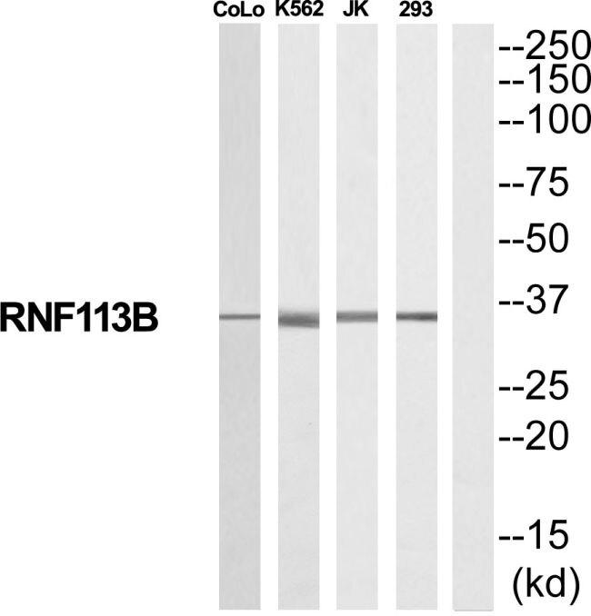 RNF113B Antibody (PA5-39570) in Western Blot