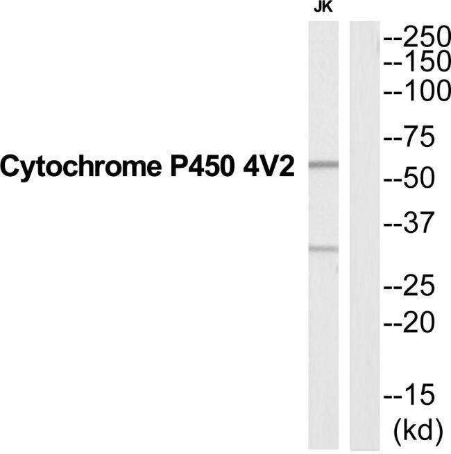 CYP4V2 Antibody (PA5-39596)