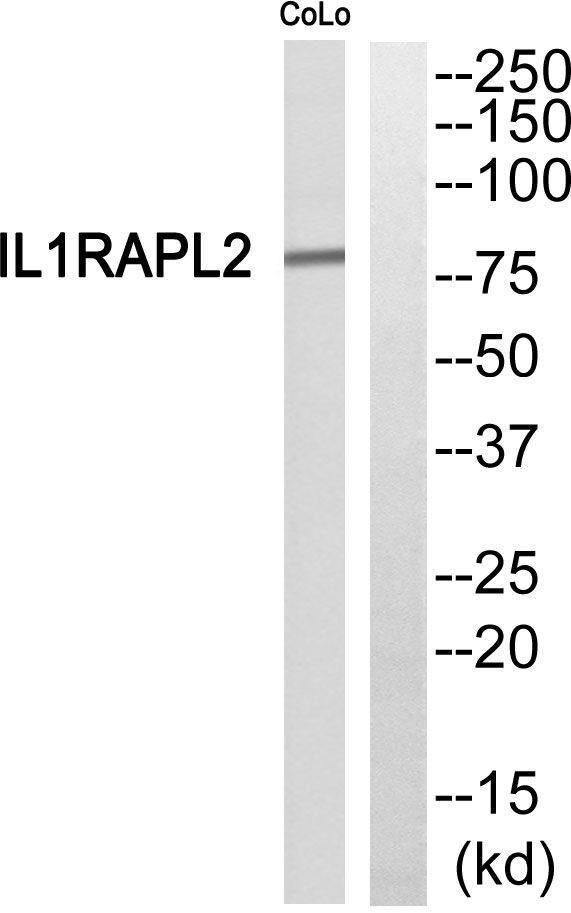 IL1RAPL2 Antibody (PA5-39608) in Western Blot