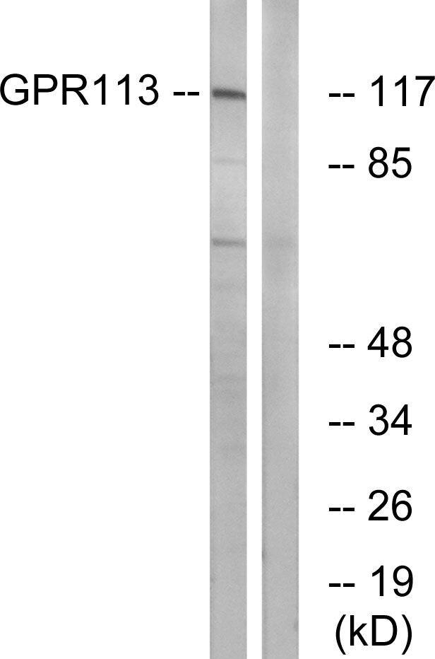 GPR113 Antibody (PA5-39619) in Western Blot