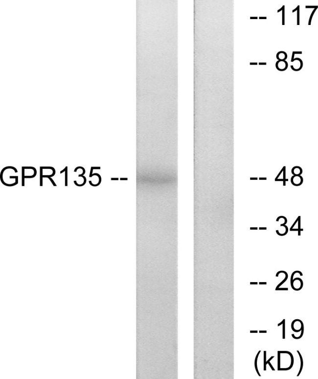 GPR135 Antibody (PA5-39621)