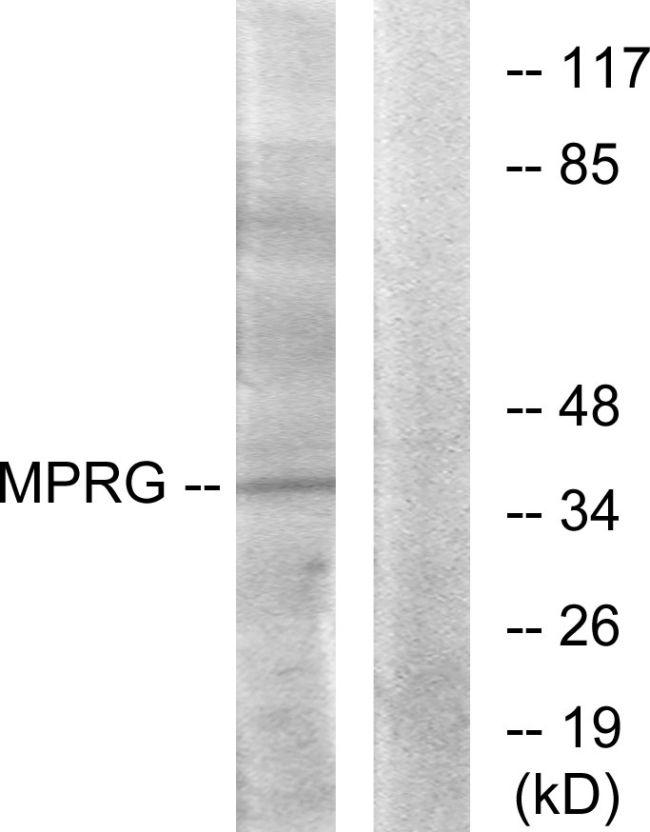 mPR gamma Antibody (PA5-39626)