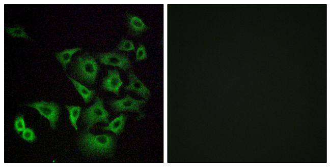 OR4K14 Antibody (PA5-39635)