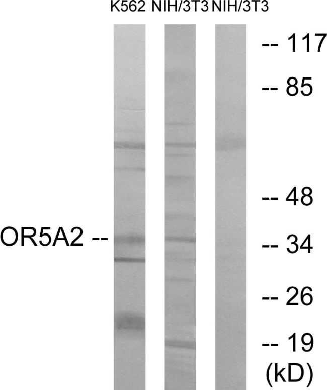 OR5A2 Antibody (PA5-39643) in Western Blot