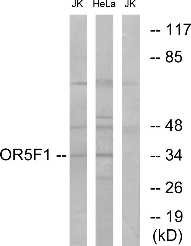 OR5F1 Antibody (PA5-39649)