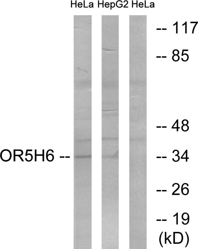 OR5H6 Antibody (PA5-39651) in Western Blot