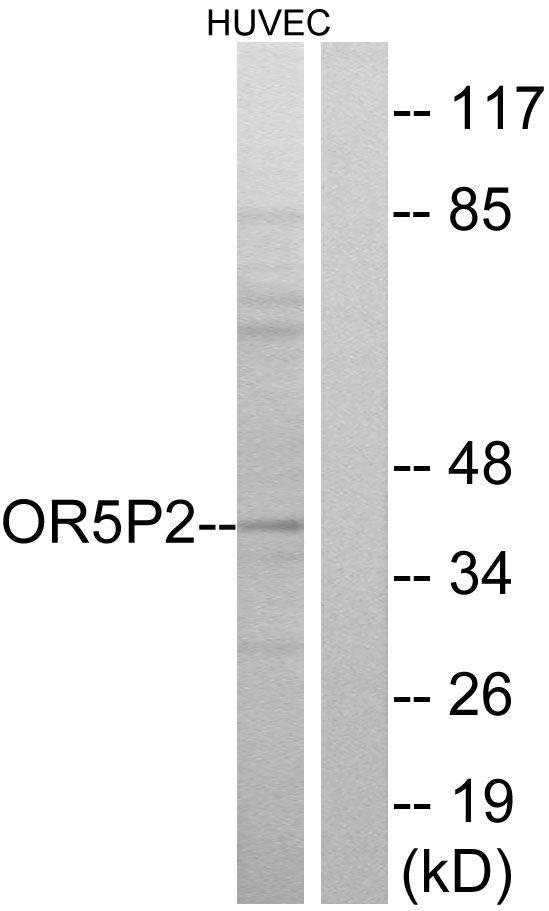OR5P2 Antibody (PA5-39657) in Western Blot