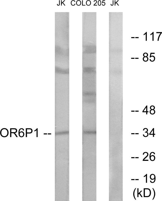 OR6P1 Antibody (PA5-39665) in Western Blot