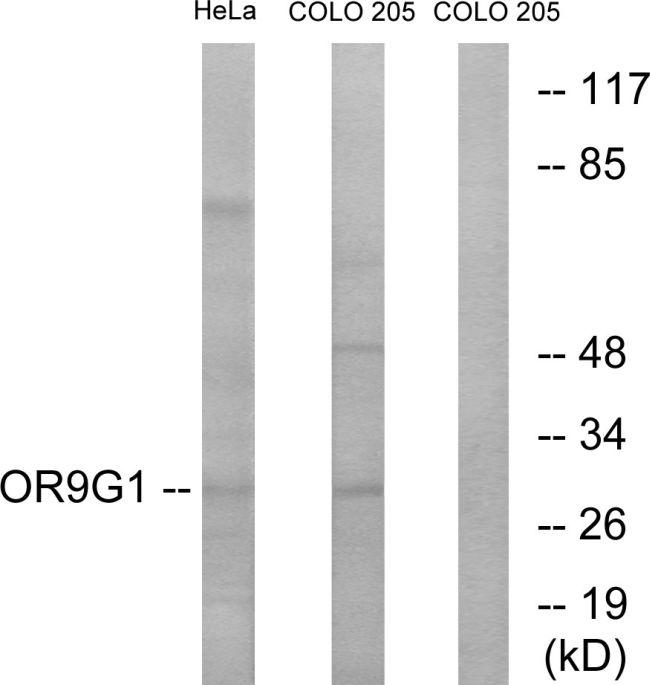 OR9G1 Antibody (PA5-39685)