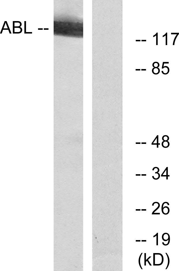 c-Abl Antibody (PA5-39688) in Western Blot