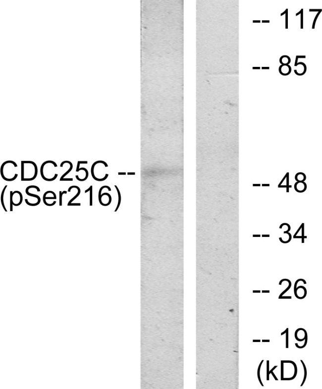Phospho-Cdc25C (Ser216) Antibody (PA5-39690) in Western Blot