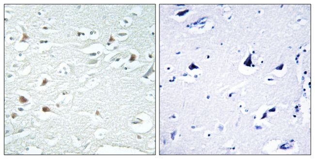 Phospho-alpha Synuclein (Tyr125) Antibody (PA5-39702) in Immunohistochemistry (Paraffin)