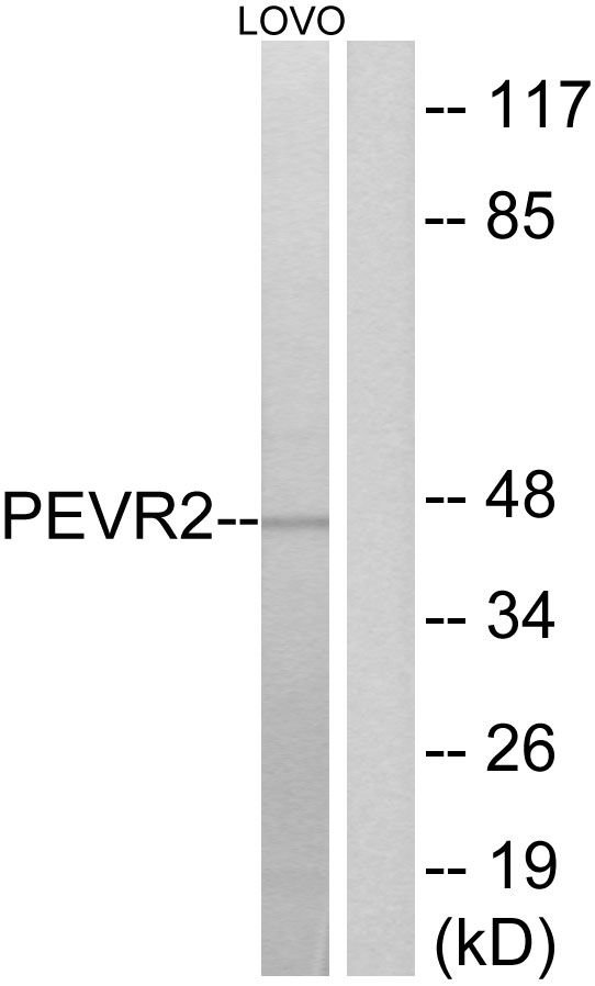 SLC52A1 Antibody (PA5-39703) in Western Blot