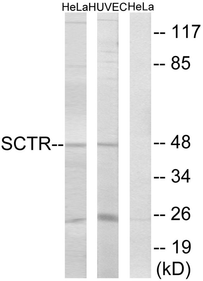 SCTR Antibody (PA5-39706)