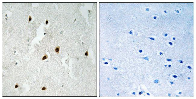 Phospho-FOXO4 (Ser262) Antibody (PA5-39717) in Immunohistochemistry (Paraffin)