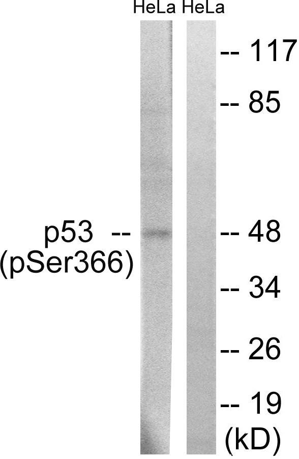 Phospho-p53 (Ser366) Antibody (PA5-39720) in Western Blot