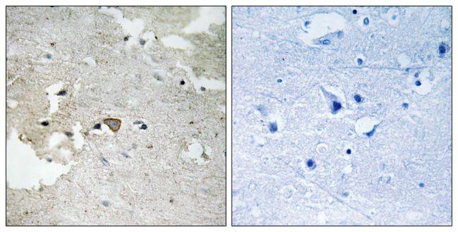 Phospho-Axl (Tyr691) Antibody (PA5-39729) in Immunohistochemistry (Paraffin)