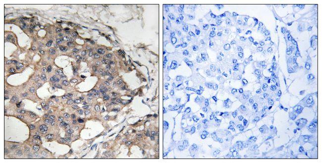 Phospho-B-Raf (Ser446) Antibody (PA5-39730) in Immunohistochemistry (Paraffin)