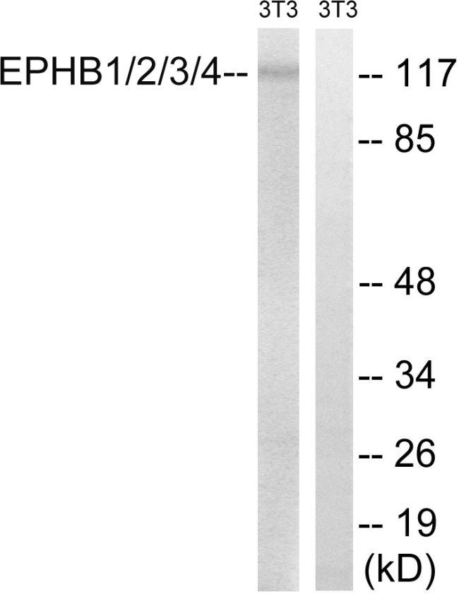 EphB Pan Antibody (PA5-39736)