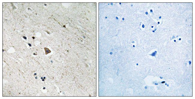 Phospho-FLT3 (Tyr969) Antibody (PA5-39737)