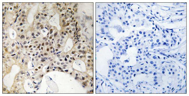 LATS1/LATS2 Antibody (PA5-39741) in Immunohistochemistry (Paraffin)