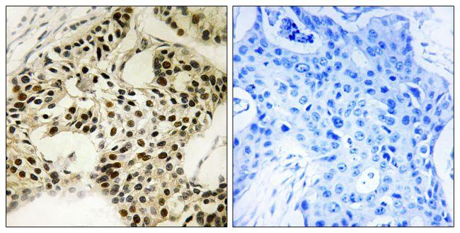Phospho-LKB1 (Ser334) Antibody (PA5-39742)