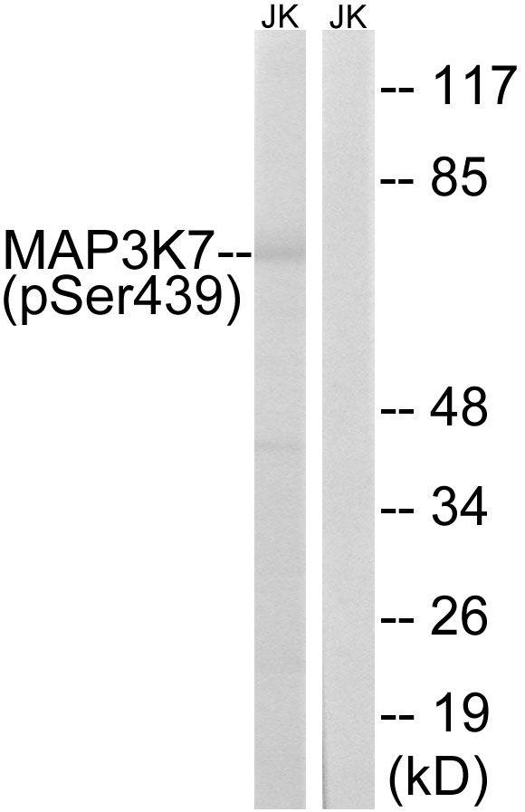 Phospho-TAK1 (Ser439) Antibody (PA5-39743) in Western Blot