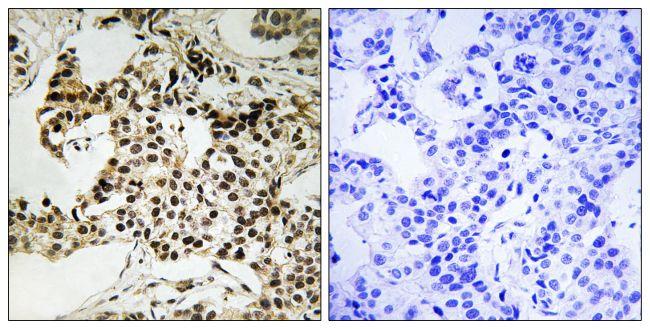 Phospho-PKR (Thr258) Antibody (PA5-39751) in Immunohistochemistry (Paraffin)
