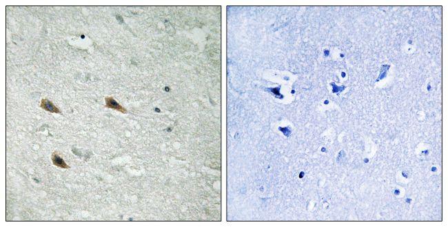 Phospho-c-Raf (Ser289) Antibody (PA5-39753)