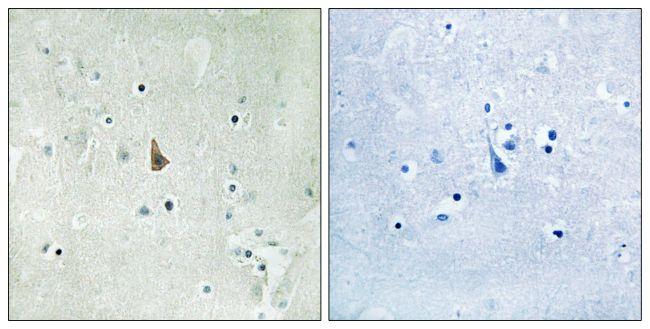 Phospho-TrkC (Tyr516) Antibody (PA5-39755) in Immunohistochemistry (Paraffin)