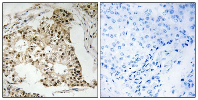 RARA Antibody (PA5-39761)