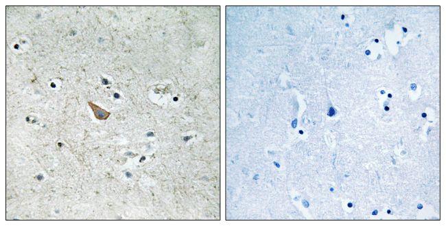 Phospho-Ephrin B1/B2 (Tyr329) Antibody (PA5-39762)