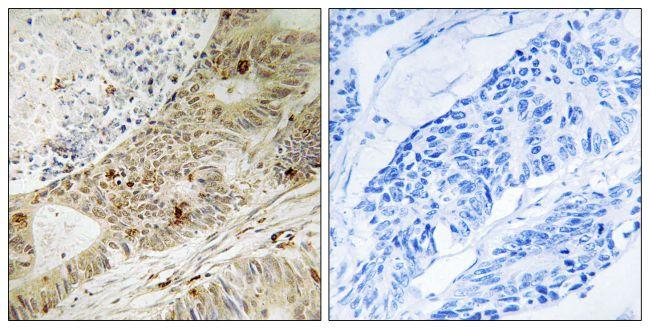 Phospho-ATRIP (Ser224) Antibody (PA5-39777)