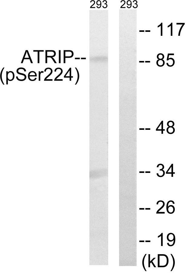 Phospho-ATRIP (Ser224) Antibody (PA5-39777) in Western Blot