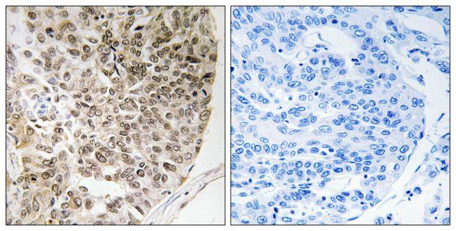 Phospho-Caldesmon (Ser759) Antibody (PA5-39780)