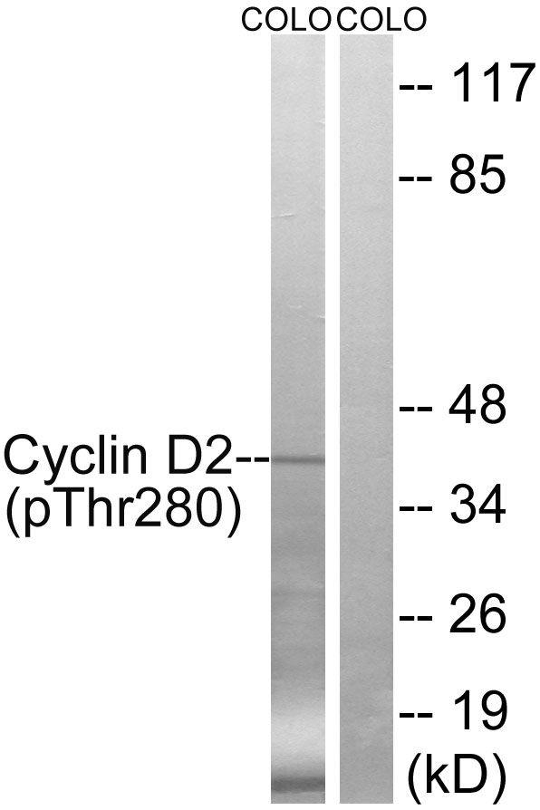 Phospho-Cyclin D2 (Thr280) Antibody (PA5-39783)