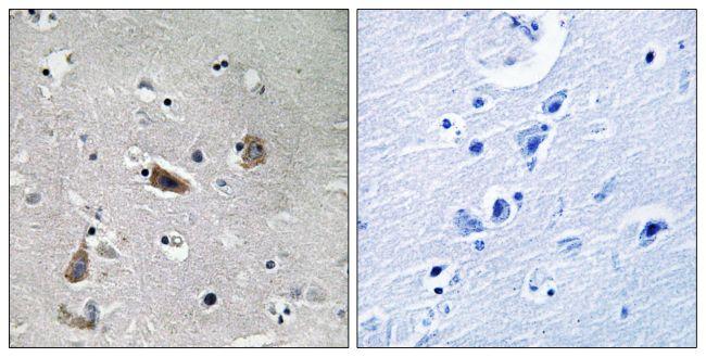 Phospho-Doublecortin (Ser415) Antibody (PA5-39784)