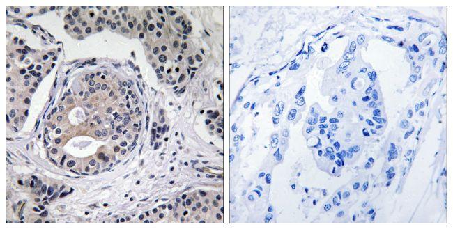 Phospho-EEF2K (Ser359) Antibody (PA5-39786) in Immunohistochemistry (Paraffin)