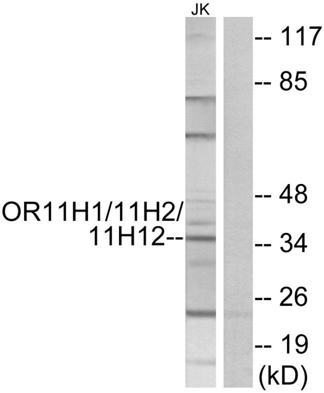 OR11H1/OR11H2/OR11H12 Antibody (PA5-39791) in Western Blot
