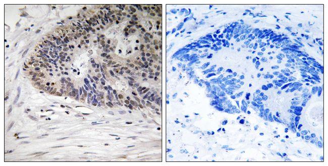 Phospho-MDMX (Ser367) Antibody (PA5-39794)